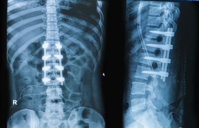 28 À ne pas confondre arthrose et arthrodèse