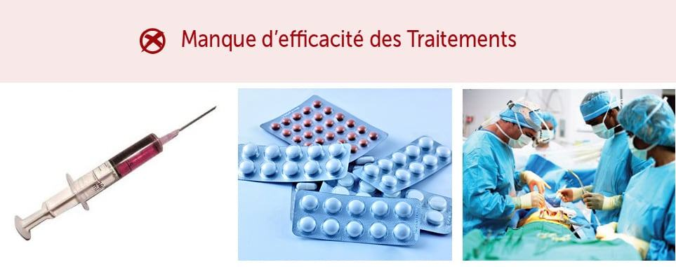 Pincement-discal-1