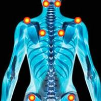 Pionts de douleur Fibromylagie